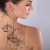 Remoção das tatuagens, dúvidas e esclarecimentos